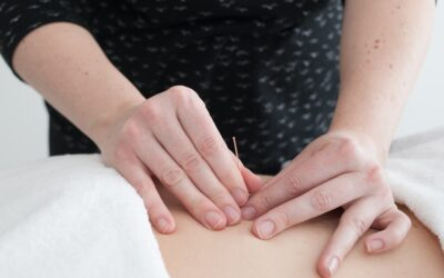 What Exactly is Acupuncture?
